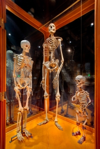 Three Mutter Museum skeletons, which may or may not have skeleton power.